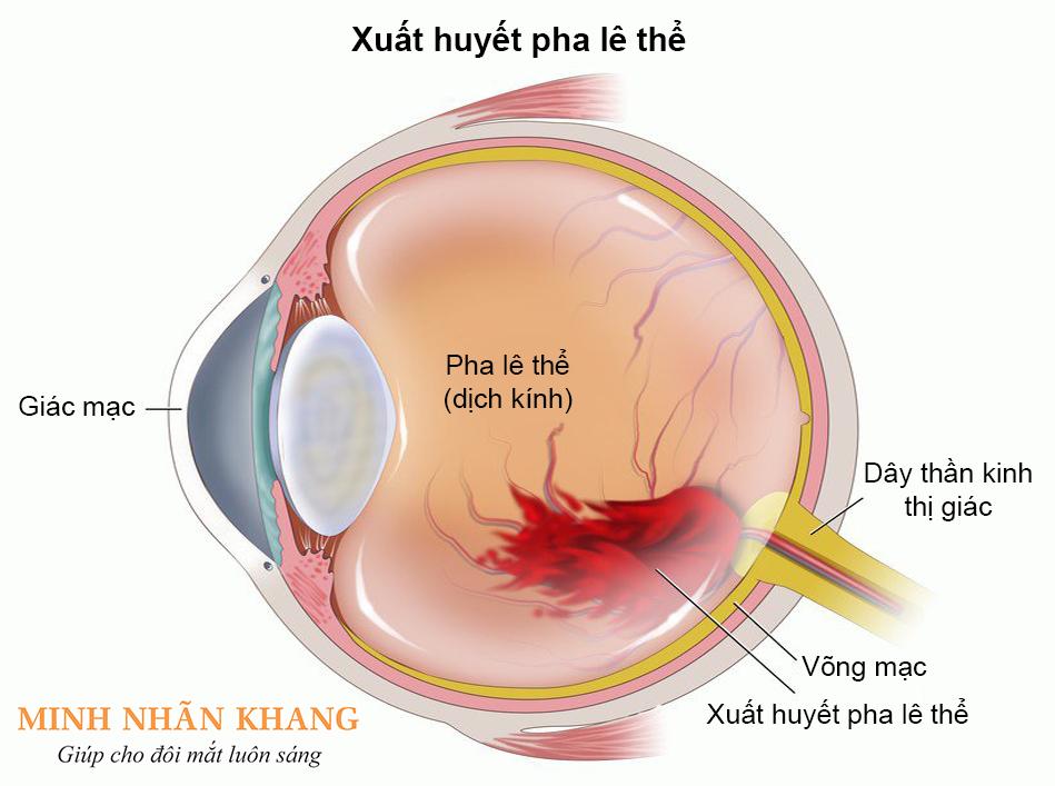 Xuất huyết pha lê thể có thể là dấu hiệu của nhiều bệnh về mắt nghiêm trọng